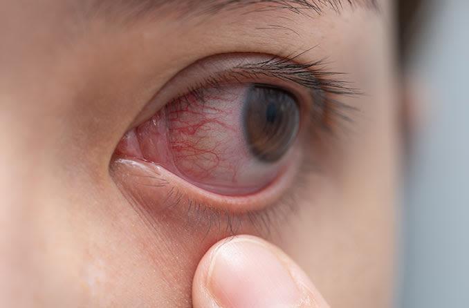 女孩拉下眼瞼,露出沮喪的紅色眼睛 Nǚhái lā xià yǎnjiǎn, lùchū jǔsàng de hóngsè yǎnjīng