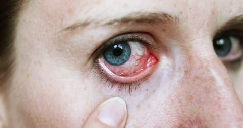 Uveitis and eye inflammation