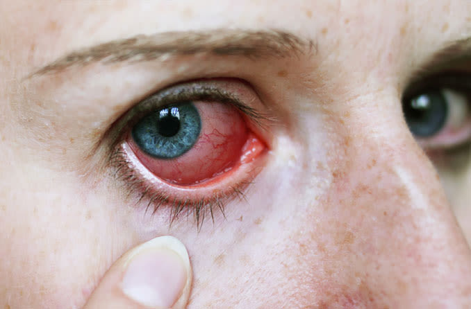 Girl pulls eyelid down to show red irritated eye