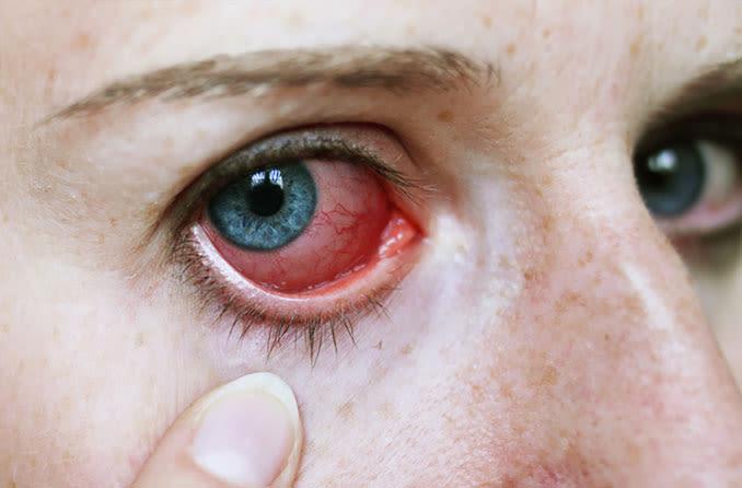 Menina puxa a pálpebra para baixo para mostrar o olho irritado vermelho