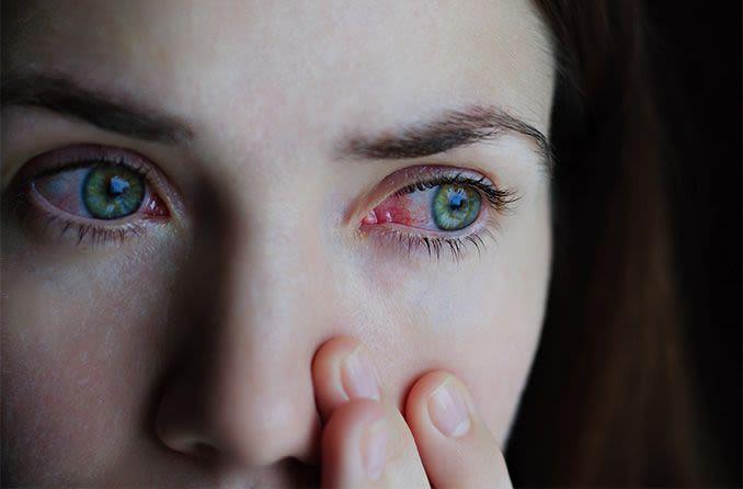 mujer con ojos rojos y coronavirus