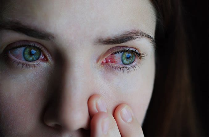 woman with red eyes and coronavirus