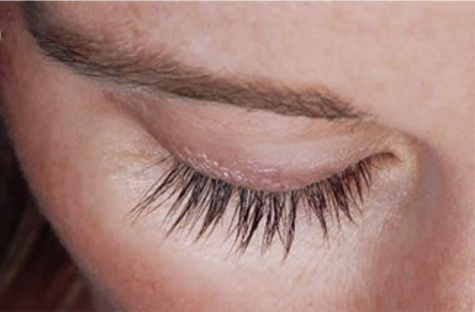 closeup of eyelashes after using Latisse