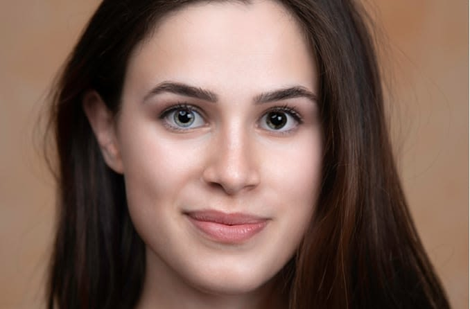 Young woman with heterochromia has one gray eye and one brown eye
