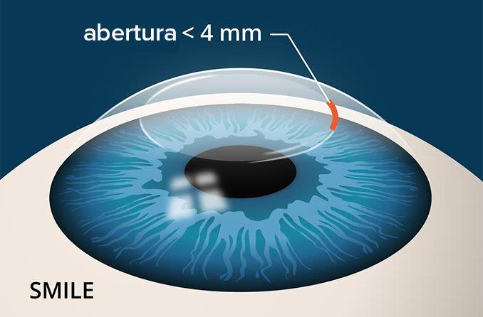 ilustração da incisão de cirurgia ocular a laser SORRISO