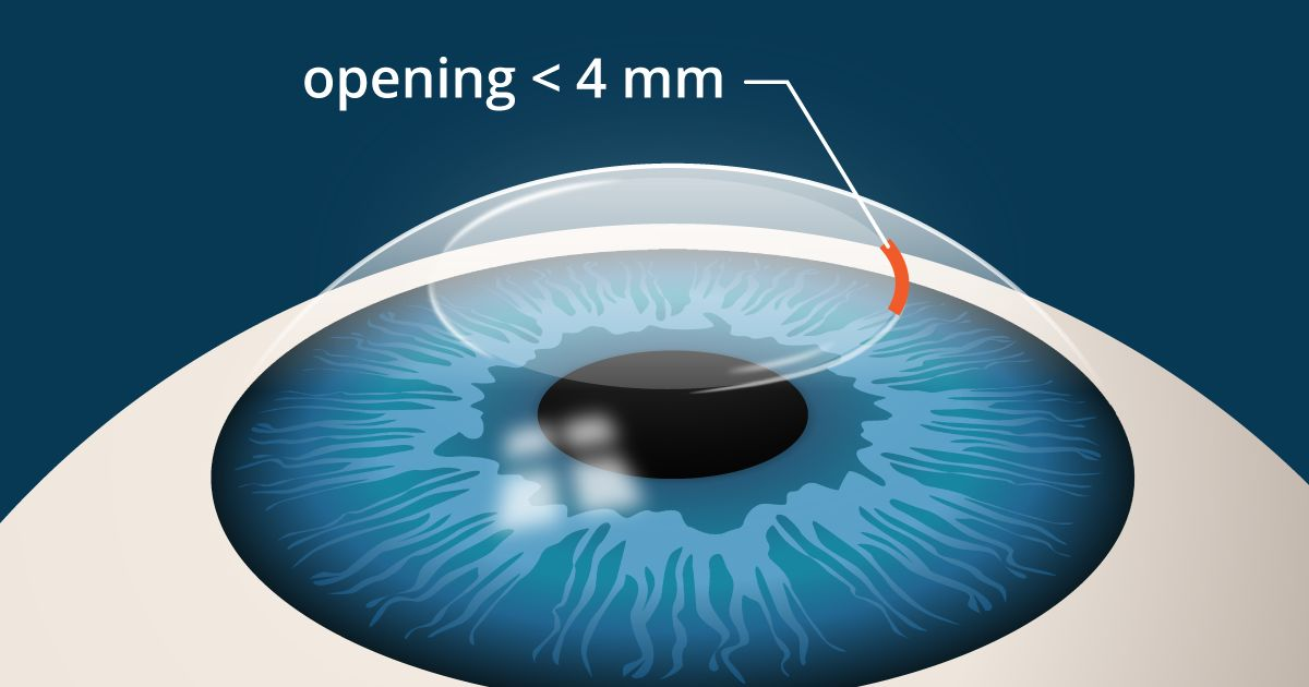 illustration of SMILE laser eye surgery incision