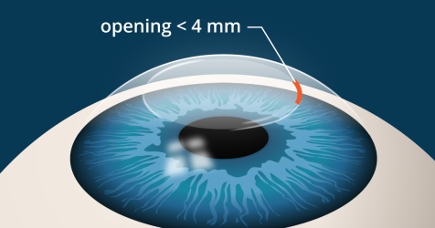 illustration of SMILE laser eye surgery incision