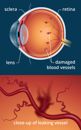 fda694381aa Eye Doctor Q and A - Diabetes and Its Effect on the Eyes
