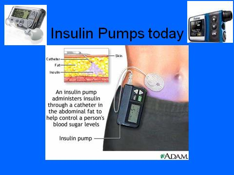 Insulin pumps today