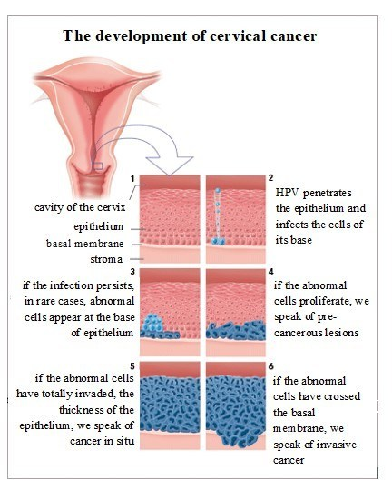 The development of cervical cancer
