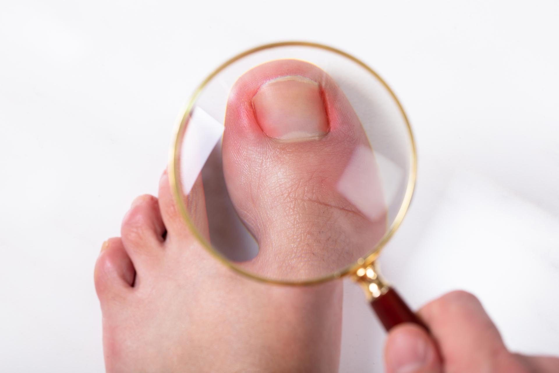 Entfernen lassen zehennagel Zehennagel dauerhaft