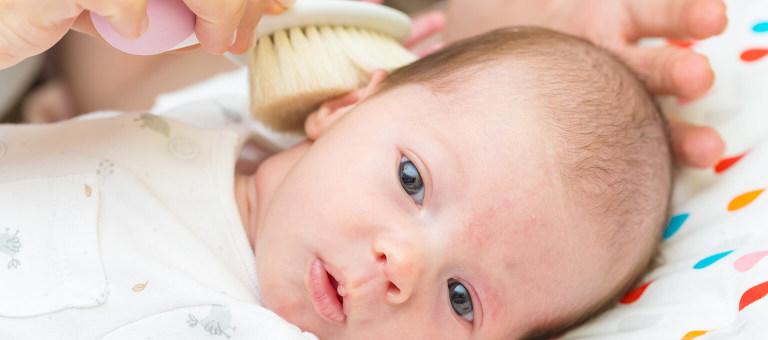 Milchschorf Baby