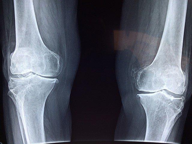 Ból kolan – przyczyny, diagnostyka, leczenie bólu w kolanach