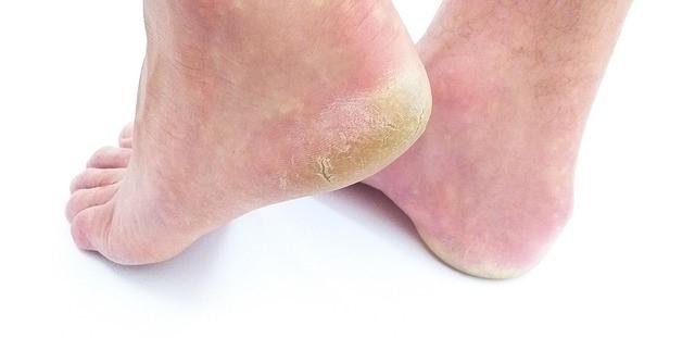 badanie mykologiczne skóry