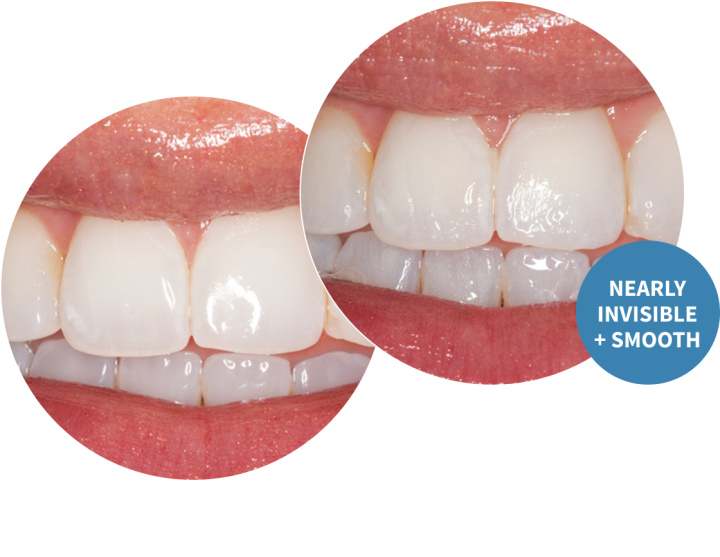 Enamelast Flouride Varnish before and after