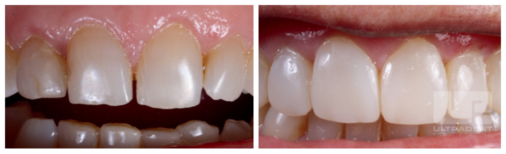 Uveneer before and after courtesy of Dr. Rafael Beolchi and Dr. Fernando Rigolin.