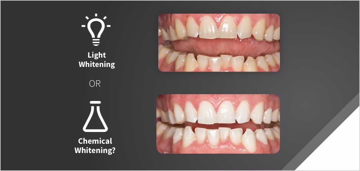 Uv Light Teeth Whitening Reviews Teethwalls