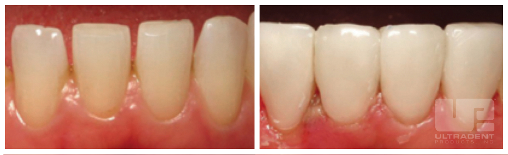 Uveneer before and after courtesy of Dr. Hal Stewart.