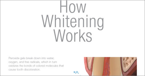 How Whitening Works Downlaod