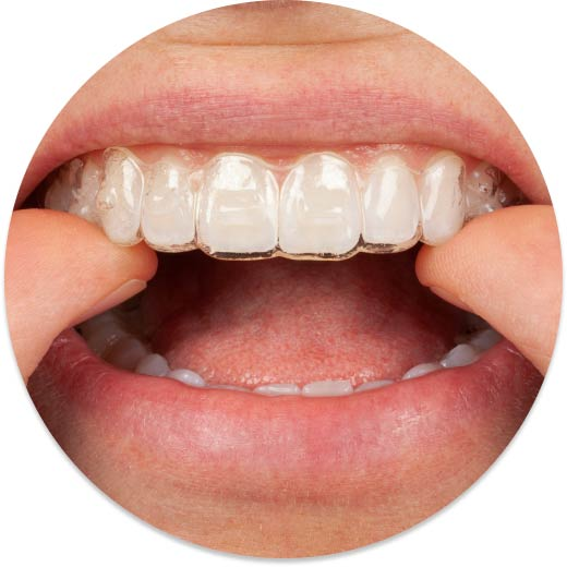 Opalescence PF for Aligners