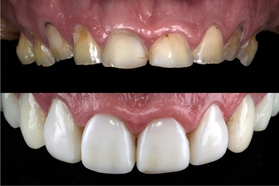 Uveneer Extra before and after courtesy of Dr. Rafael Beolchi.