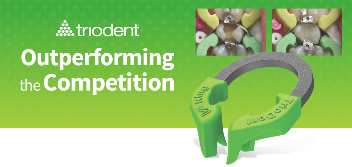Triodent—Outperforming the Competition