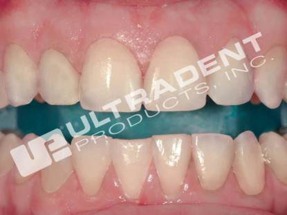 Opalescence Boost Products Category Ultradent