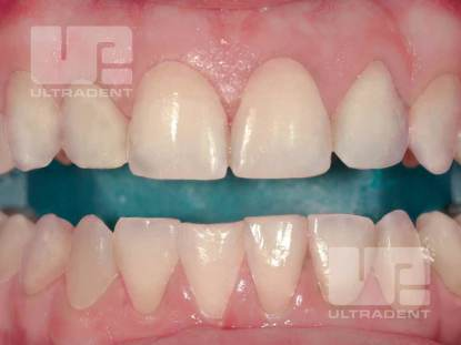 Opalescence™ Boost™ - Products - Category - Ultradent