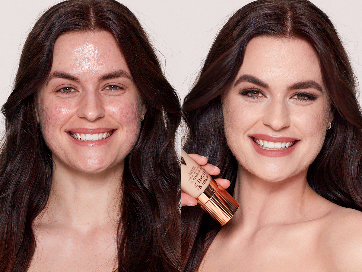 Find The Best Foundation For Acne With Charlotte S Flawless Tips Charlotte Tilbury