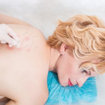 Лечение в санатории Машук Аква-Терм, иглоукалывание спины