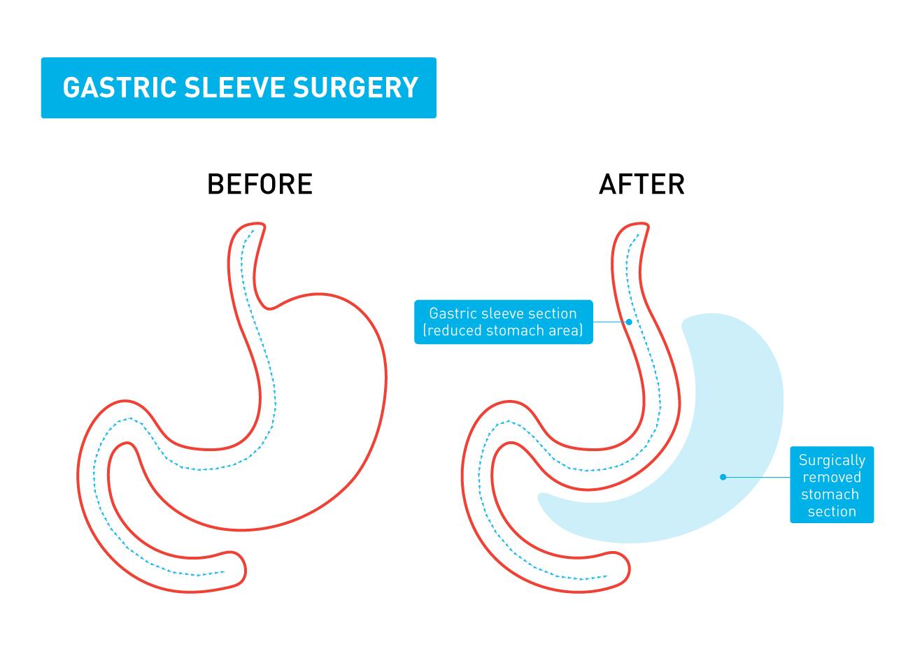 Types Of Weight Loss Procedures Live Better Medibank Live Better