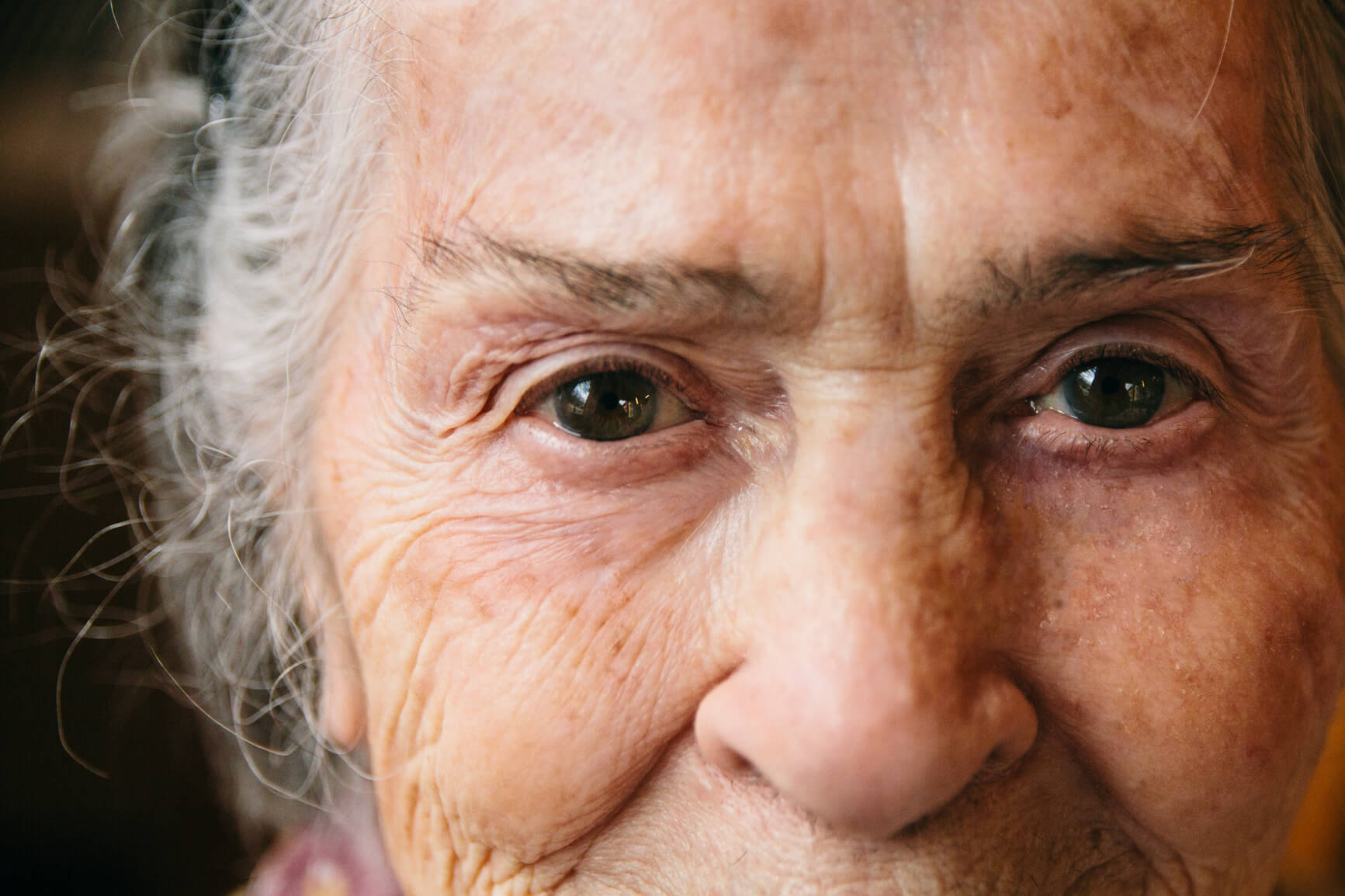 The incidence of cataracts increases with age