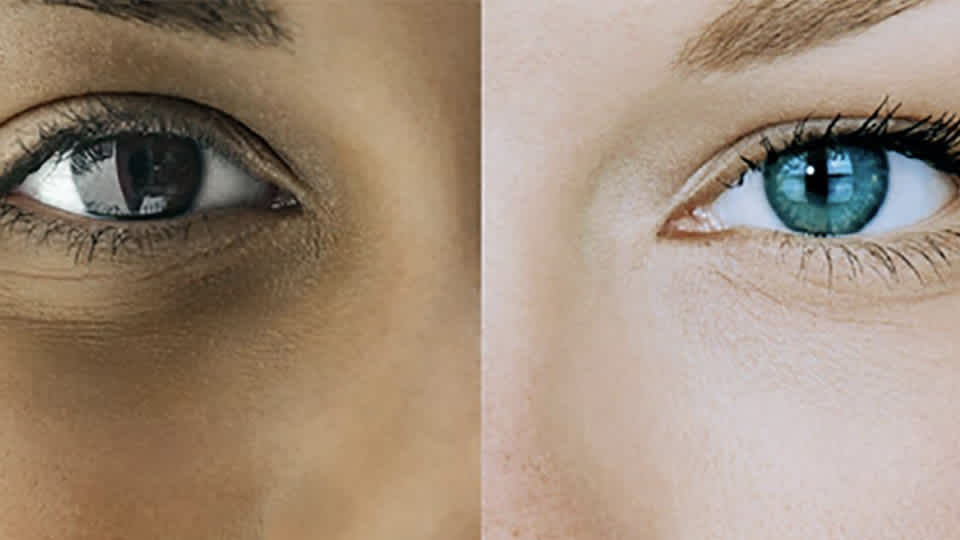 Side-by-side close-up photo of two different colored eyes on two different people.