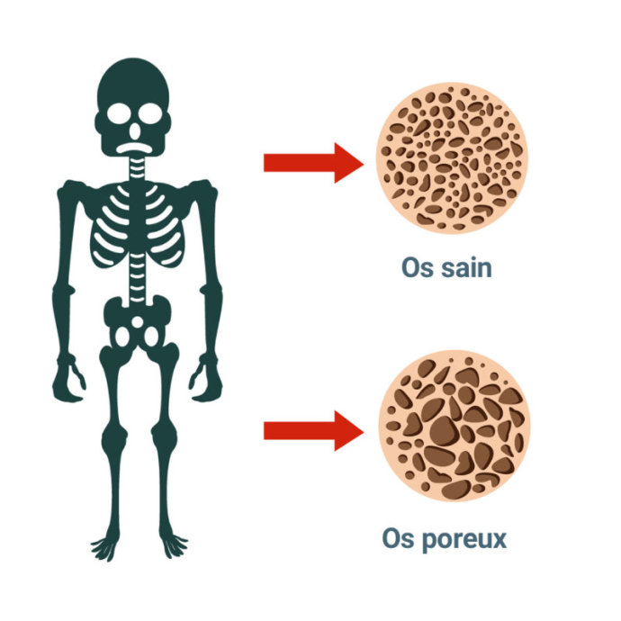 definition-osteoporose-personnes-agees
