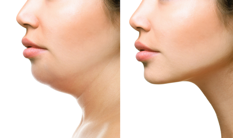 Fat Dissolving Injections - Can You Really 'Melt Away' A Double Chin?