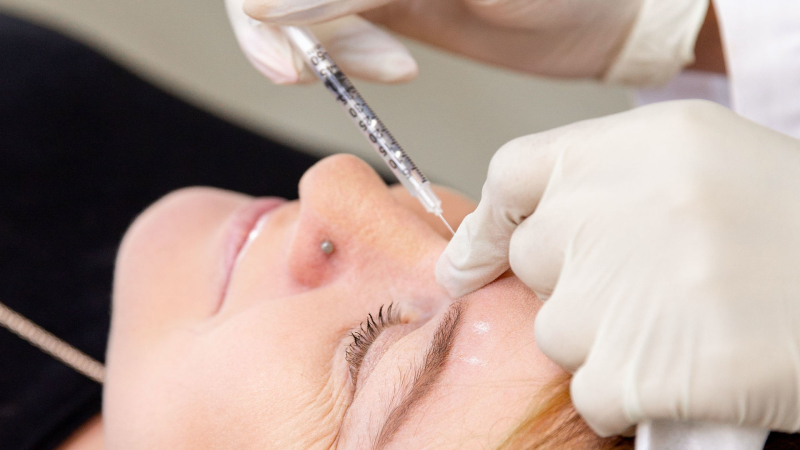 Anti-wrinkle Injections (Botox)® in Bournemouth & Poole