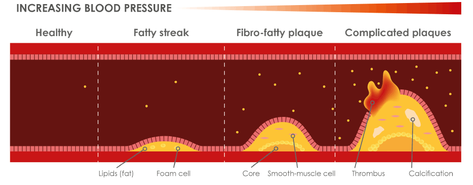 Progression of atherosclerosis over time