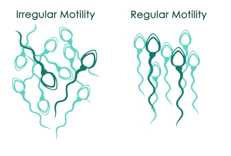 regular and irregular sperm motility