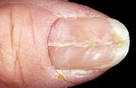 Онихорексис (onychorrhexis)