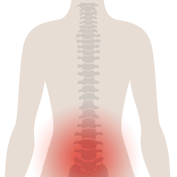 TypesOfBackPain LowBack