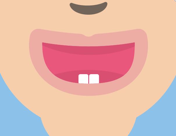 Teeth Bundeling