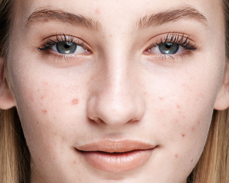 What Is a Blemish? Article Image
