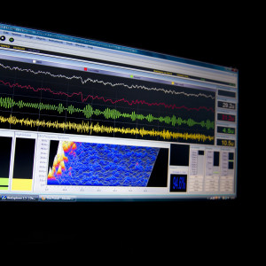 Monitor with brain waves.