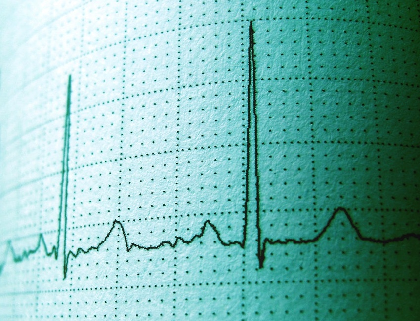 ECG showing heart rate variability