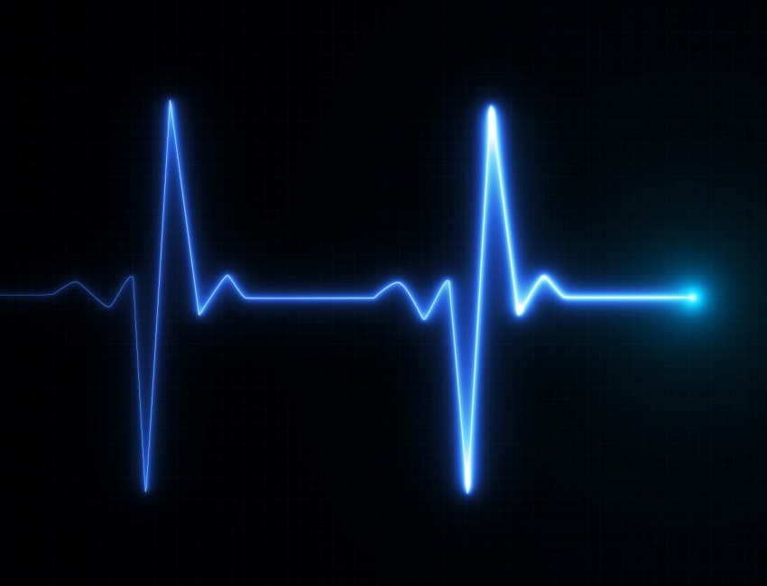 ECG Pulse trace