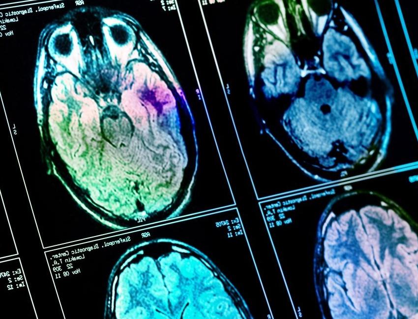 Brains scan to detect Alzheimer's disease