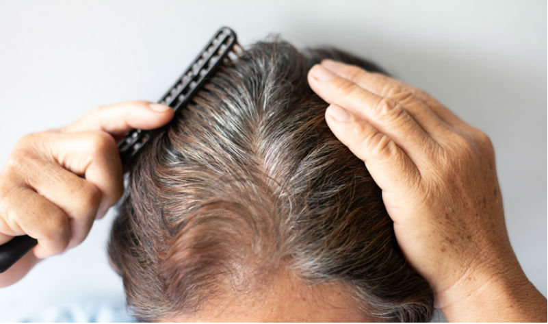 The One Pill That Treats Hair Loss Heart Failure And More Mdlinx