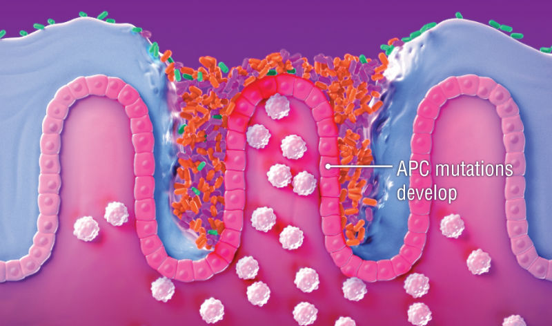 Tumor Generating Bacteria Collaborate To Trigger Colon Cancer Mdlinx