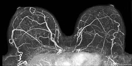 Preoperative Breast Mri Associated With More Testing And