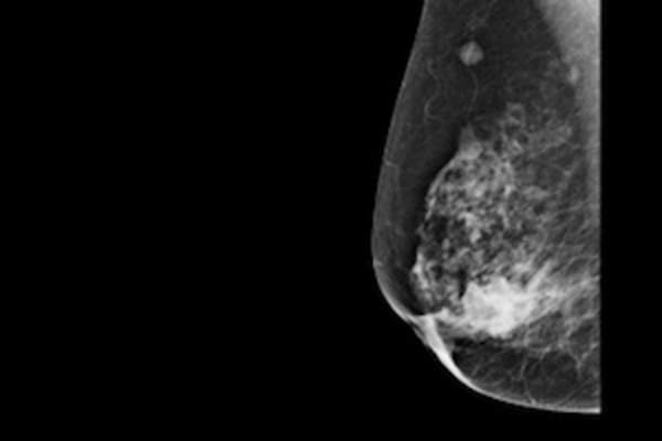 Digital mammogram showing breast cancer.